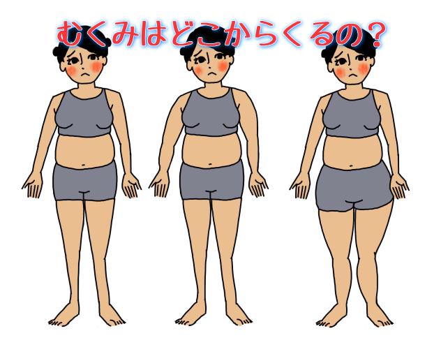 むくみ 肥満